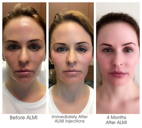ALMI Treatments