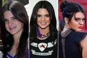 Then & Now: Kendall Jenner's Dramatic Transformation